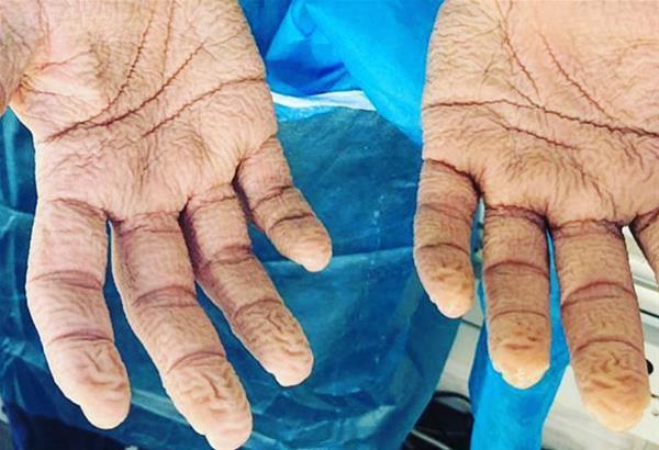 Συγκλονιστική η φωτογραφία με τα χέρια νοσηλευτή του ΕΟΔΥ, που ανήρτησε ο κ. Αρκουμανέας