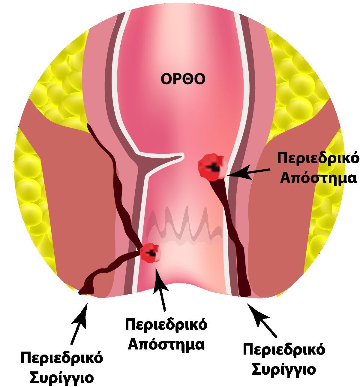 Παθήσεις του πρωκτού και αποτελεσματική - ανώδυνη θεραπεία